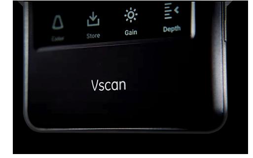 Use Vscan Extend Handheld Ultrasound for Emergency Medicine