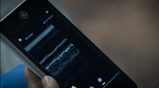 Know more about M-Mode app for Vscan Extend handheld portable ultrasound