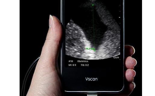 Vscan Extend Handheld Ultrasound for Women's Health